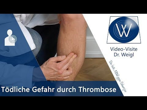 Chondrolon bei den Thrombosen