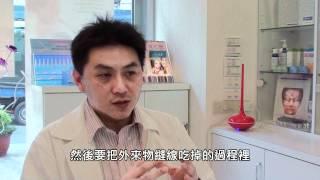 李坤達醫師 - 「細線臉部拉提」介紹