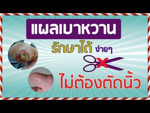 การรักษา dimexide ของโรคสะเก็ดเงิน