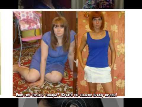 Как убрать жир с коленей до и после