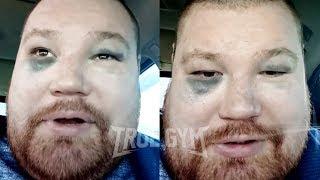 Дацик о своем поражении в бою Артему Тарасову / Реакция на решение судей