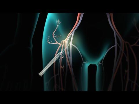 Gaya ng dibdib na walang surgery
