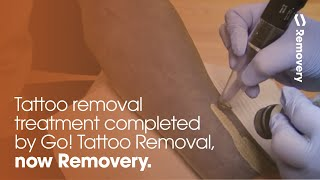 Laser Tattoo Removal On A Blacked Out Forearm