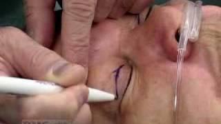 """""""Drooping Eyelid"""" Repair Surgery"""