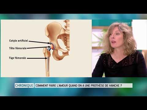 Elektrophorese für Kniegelenks