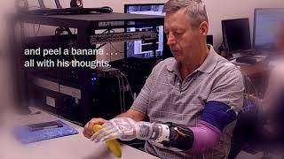 University of Utah researchers develop LUKE Arm