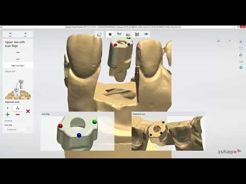 Dental Lab Life: Scanning an Implant in 3Shape