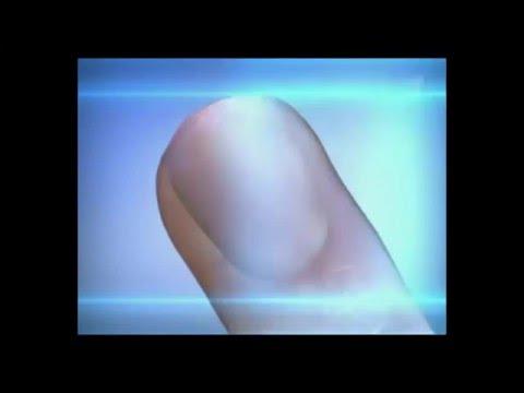 Gribka auf den Nägeln die Merkmale des Fotos die Behandlung