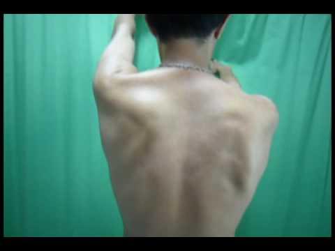 Jak usunąć bliznę na mięśniu