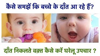 8 Teething Symptoms in Babies & 4 Home Remedies to Sooth Teething(Hindi)||