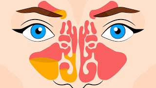 How to unclog your sinuses and clear a stuffy nose instantly!