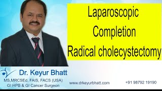 Lap Completion Radical cholecystectomy