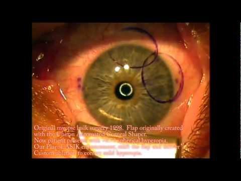 Grafika a látás javítása érdekében