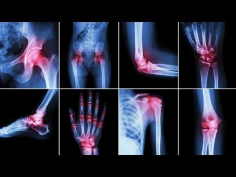 Artroza simptomelor tratamentului genunchiului
