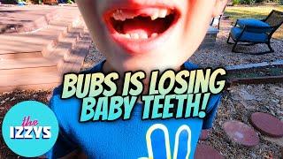 BUBS IS LOSING HIS BABY TEETH!