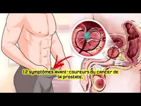 Huile de carvi pour le traitement de la prostatite