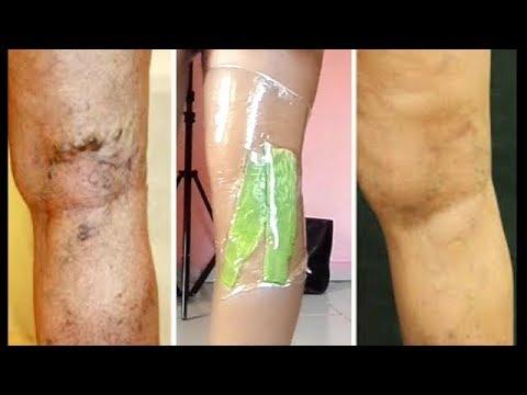 Ulcera di vena varicosa