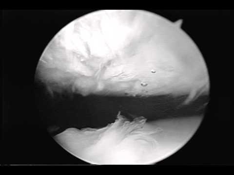 A gerinc osteoarthritisének műtéti kezelése