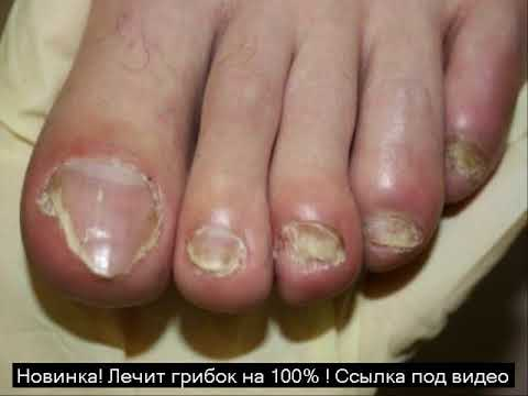 Gribok auf den Nägeln bei der Behandlung der Abgang