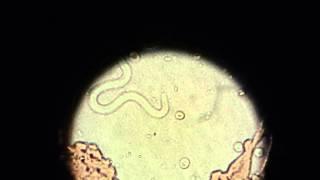 Heartworm Infection - Microfilaria