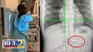 Georgia 7-year-old accidentally swallows AirPod