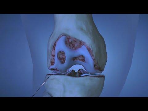 Súlyos fájdalom a térdízületeiben mit kell tenni