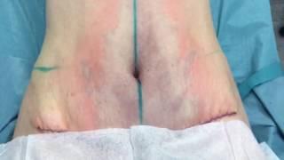 Комбинированная операция: абдоминопластика и увеличение груди