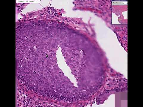 Virus papiloma humano contagio por banos