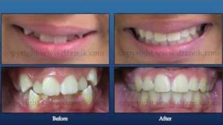 preview picture of video 'Braces by Dr Zreik Beirut Lebanon'