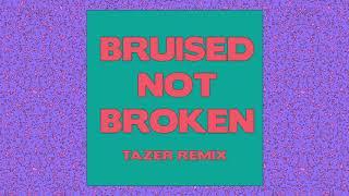Matoma   Bruised Not Broken (feat. MNEK & Kiana Ledé) [Tazer Remix] {Official Audio}