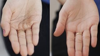 Simple Ways To Detect Hair Fall And Prevent Hair Loss