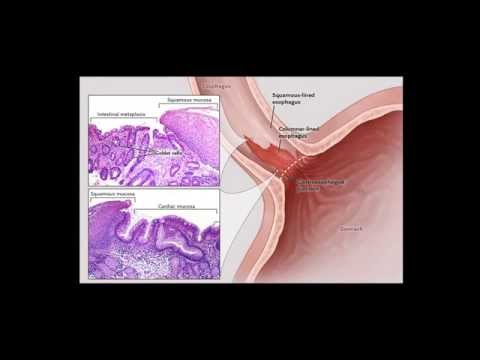 Video How To Cure Barrett's Esophagus Naturally | Natural Remedies for Barrett's Esophagus