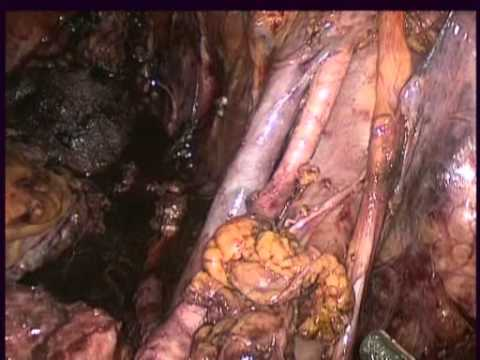 Lymphadenectomy After Radical Cystectomy - A New Access