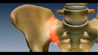 Where is the Sacroiliac Joint? Anatomy of the Sacroiliac Joint