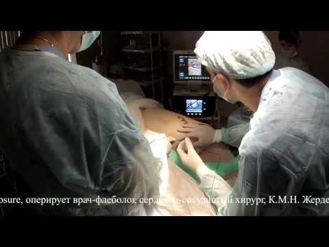 Il laser da posizione di asterischi vascolare