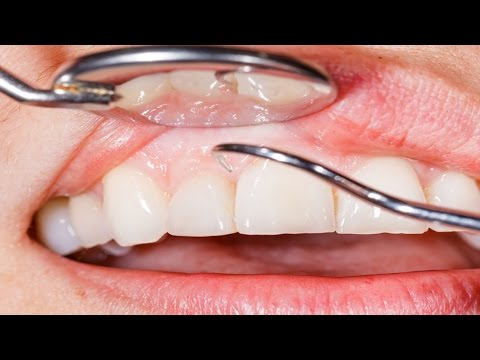 Video 7 Effective Home Remedies For Gum Disease (Periodontal Disease) That You Should know