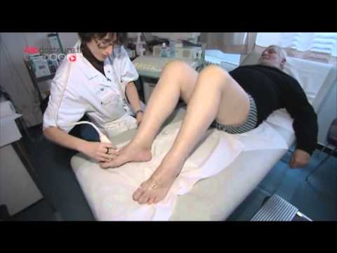 Lexpérience personnelle du traitement du psoriasis