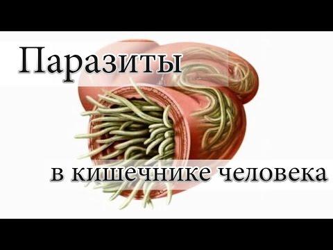 Травы против паразитов у человека