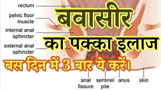 बवासीर से छुटकारा हमेशा के लिए । Piles Treatment in Hindi | Health Tips  IMAGES, GIF, ANIMATED GIF, WALLPAPER, STICKER FOR WHATSAPP & FACEBOOK