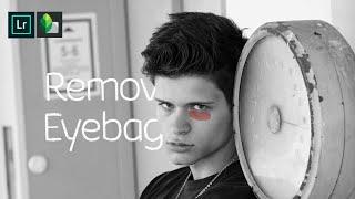Remove Eye bags - Tutorial