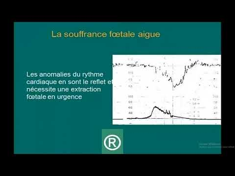 Lhypertension portale, les formes obstructives