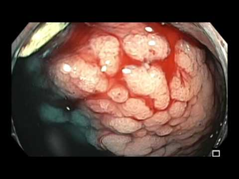 Colonoscopy: Polyposis