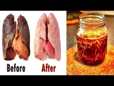 Wie so zu machen, um Ein für alle Mal Rauchen aufzugeben