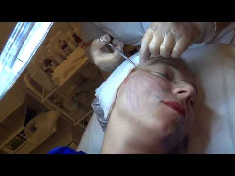 Как убрать отек глаз от аллергии