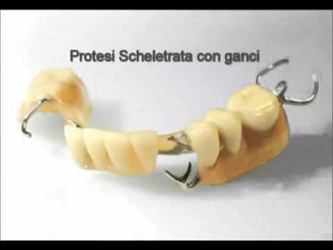 Oltre a trattare i denti nel diabete