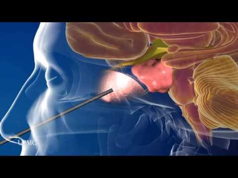 Human papillomavirus infection squamous cell carcinoma