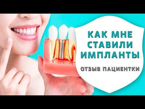 Имплантация зубов или съёмные зубные протезы. Отзыв пациентки об имплантации зубов | Дентал ТВ