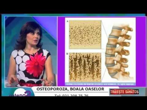Mataren crema plus cu osteochondroza