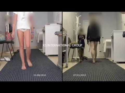 Gli esercizi isometrici per il video rachide cervicale della colonna vertebrale