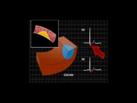 Wysokie ciśnienie krwi